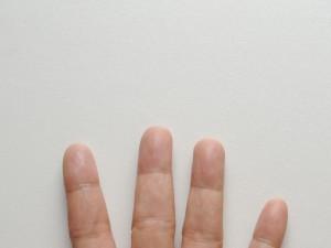ガングリオン,軟部腫瘍